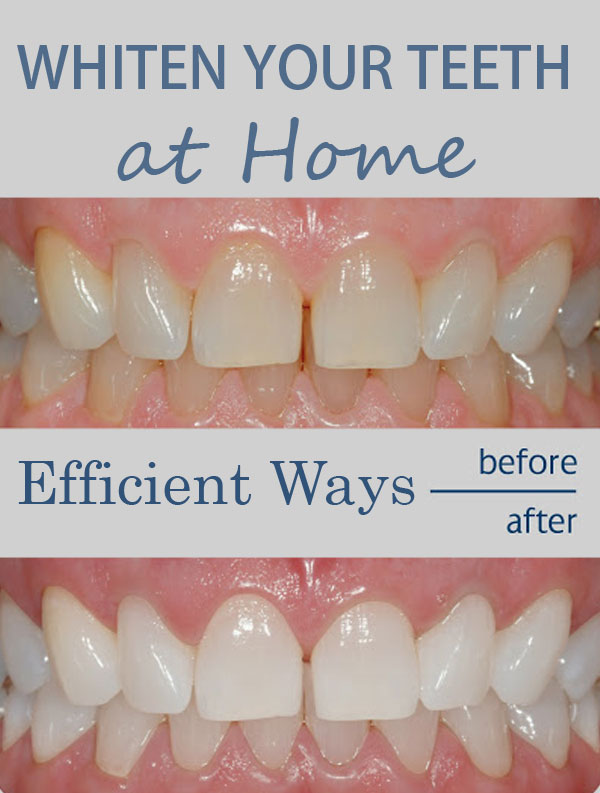 Efficient Ways To Whiten Your Teeth At Home Everything In One Place