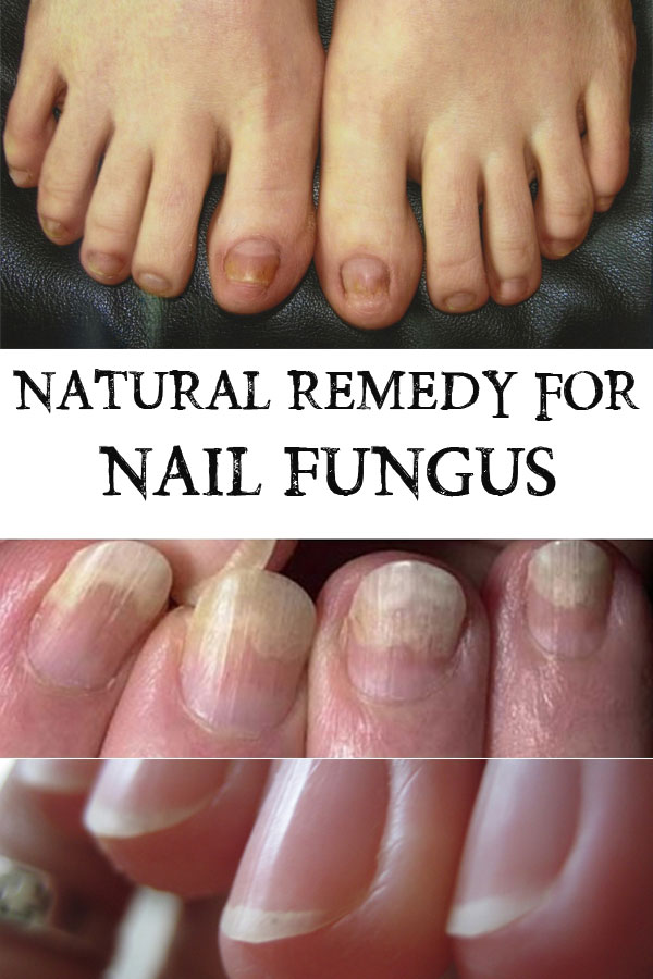 Natural Remedy for Nail Fungus - Everything in one place