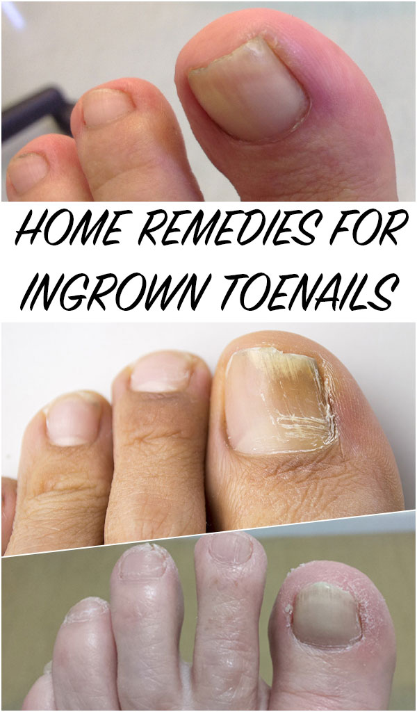 Home Remedies for Ingrown Toenails - Everything in one place