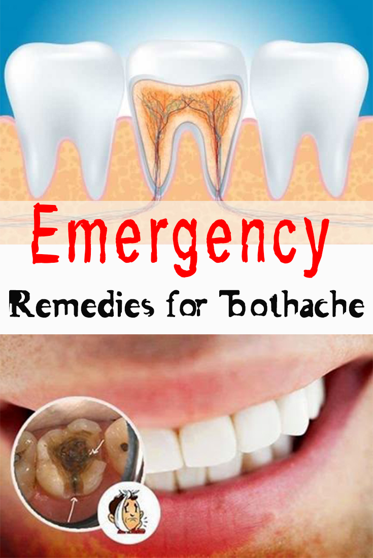 Emergency Remedies for Toothache